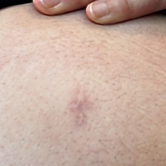 Vatsassa oleva arpi tähystysleikkauksesta